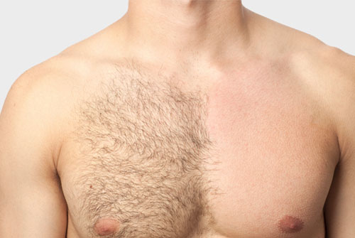 Easy way to remove chest hair